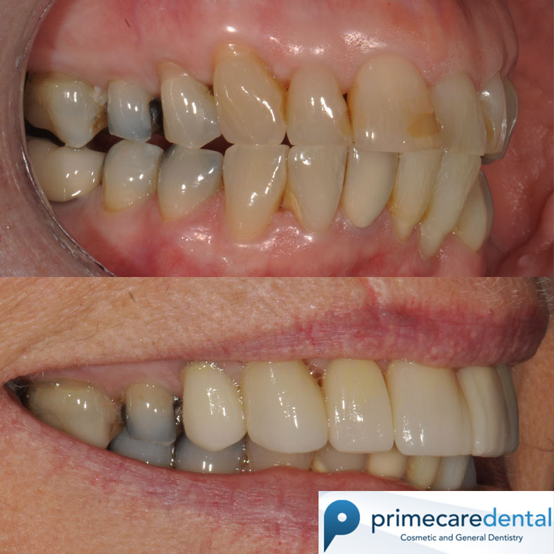 Crowns & Veneers