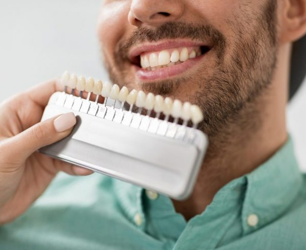 close up of dentist with tooth colour samples choosing shade for male patient teeth at dental clinic