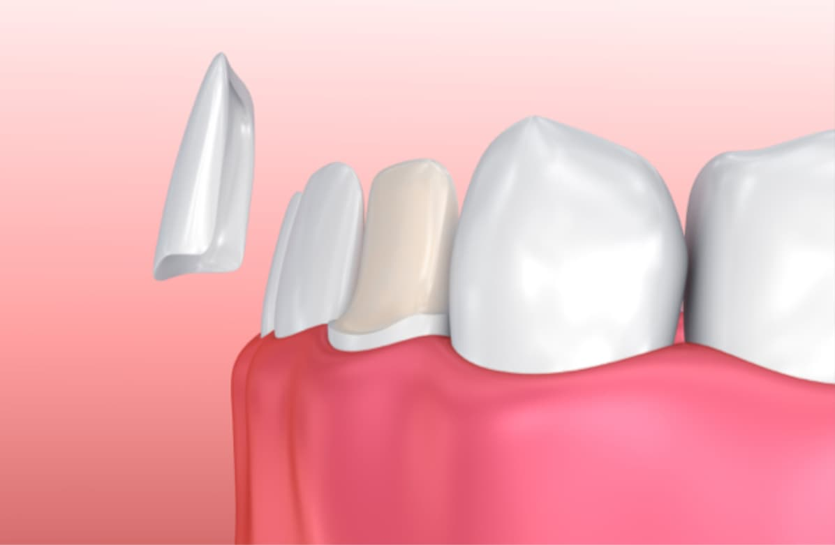 Dental Veneers VS Lumineers | Best Dental in Houston, TX